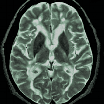 T2-hypointensity-in-multiple-sclerosis-MS-T2-weighted-fast-spin-echo-axial-magnetic (2)